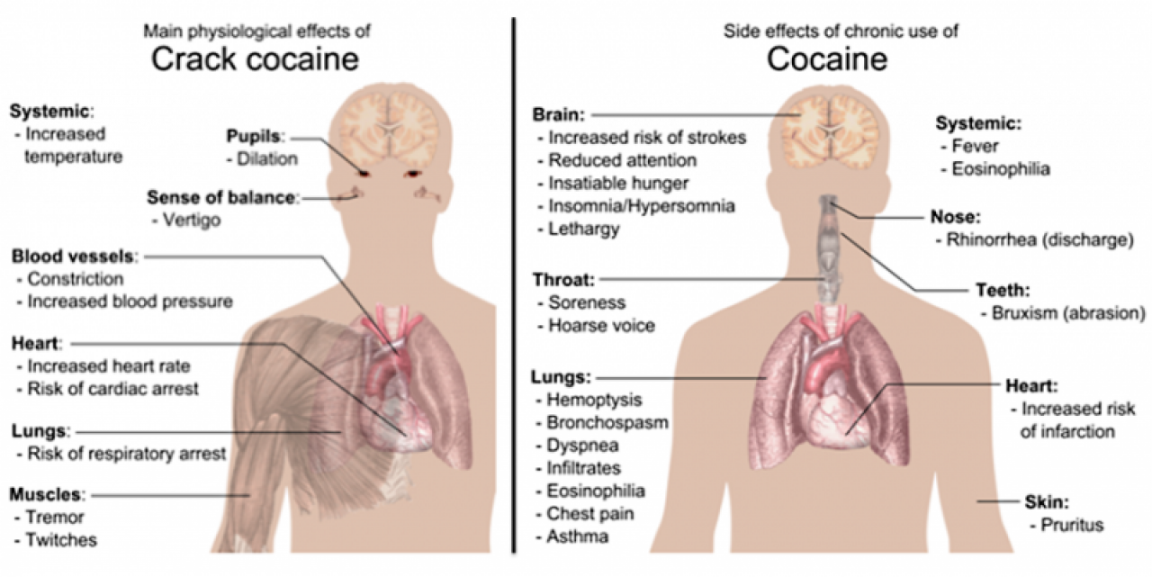the effects of cocaine abuse Cocaine is a highly addictive drug that can have serious effects on your health and well-being learn what it does to your body.