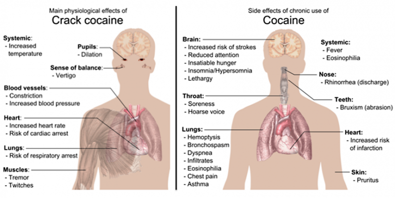 effects of cocaine on the heart