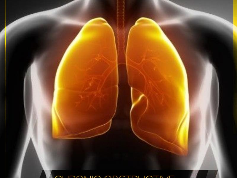 Mayom Hospital Gurgaon, COPD