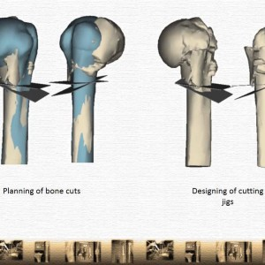 Role of 3D printing in orthopedics