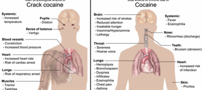 Dr. Deepak Raheja: Cocaine-snorting killing youngsters