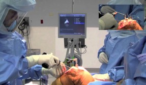 Computer-Assisted Knee Replacement Surgery